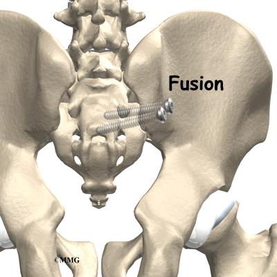 Sacroiliac Joint Dysfunction Orthogate