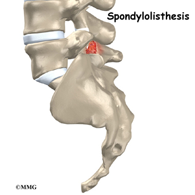 spondylolisthesis of l5 over s1