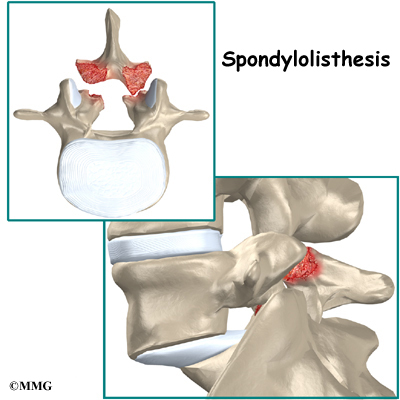 spondylothesis repair Spondylolisthesis can also occur when there is a spondylolysis and subsequent disc degeneration surgery can be performed in younger patients to repair the defect.