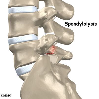 Back pain spondylothesis treatment