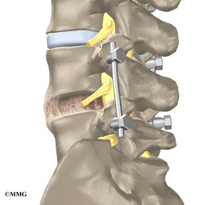 Spine Surgery San Antonio