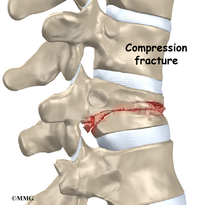 Severe compression fractures
