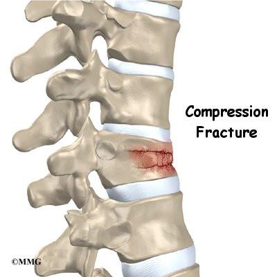 compression fracture of the t12 vertebra