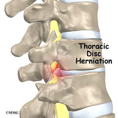 Thoracic Disc Herniation  Orthogate. Accidents In Construction Arrow Self Storage. Black Mountain Drug Rehab Axis Online Banking. Rebuilt Transmissions Dallas Cd Best Rates. Everest College Santa Ana It Associate Degree. Demande De Carte De Credit Free Web Domains. Medical Assistant Schools Online Degree. Beauty School In Tampa Fl Jack Rosen Kitchens. Peninsula Federal Credit Union