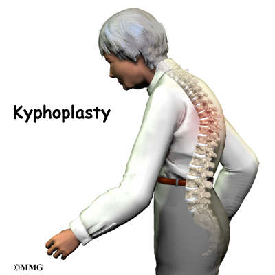 What are the risk of kyphoplasty?