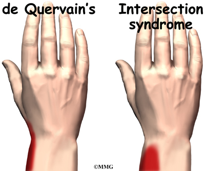 Causes of Pain in the Thumb and Wrist LIVESTRONGCOM