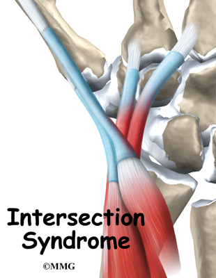 intersection syndrome symptoms