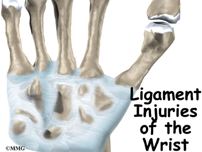 Ligament Injuries Of The Wrist Orthogate