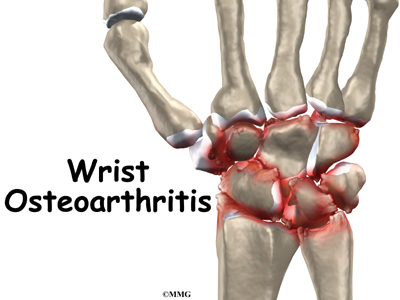Osteoarthritis Of The Wrist Joint Orthogate