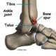 Ankle Osteoarthritis