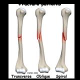 Humerus Fracture