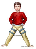 Child Hip Conditions