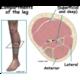 Leg (Tibia/Fibula)