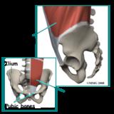 Pelvis Fracture