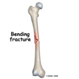 Femur Fracture