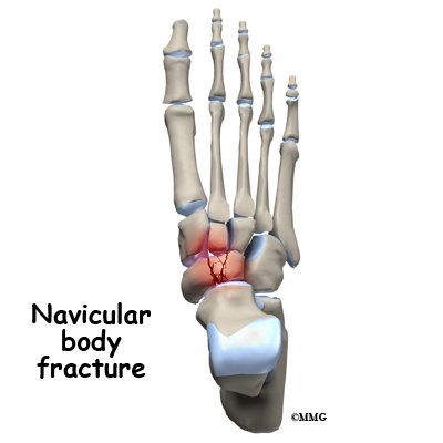 Fractures of the navicular body