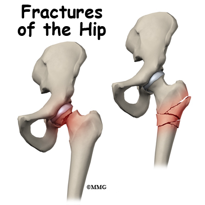 Symptoms of hip fracture in adults