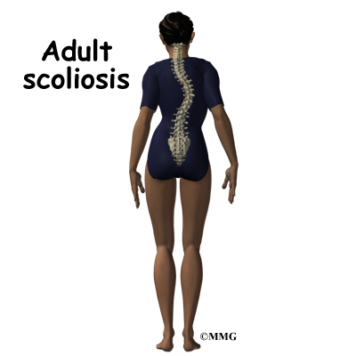 adult scoliosis Adult scoliosis occurs when the spine curves abnormally in one or more places these curves may affect balance and alignment in the body, and can limit a person's.