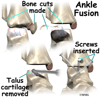 ankle joint fusion