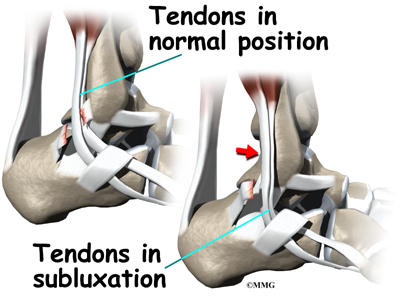 ankle_peroneal_sublux_causes02.jpg