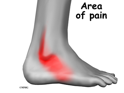 peroneal tendon subluxation