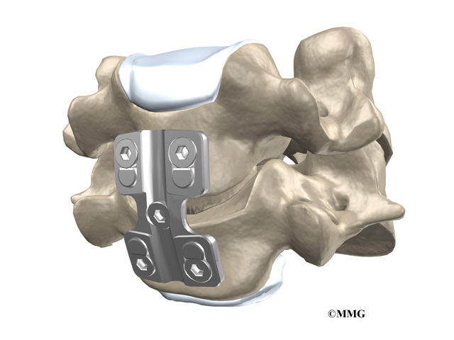 Anterior Cervical Discectomy And Fusion Eorthopod Com