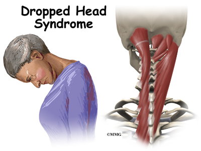 Dropped Head Syndrome Eorthopod Com