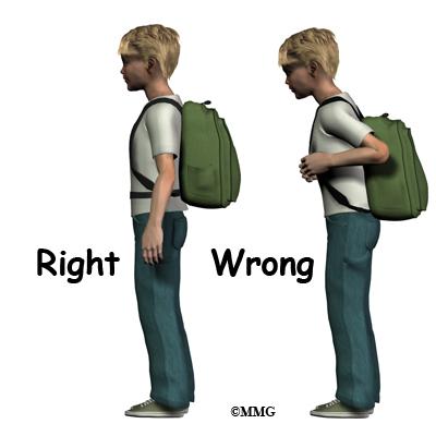 [تصویر:  child_back_pain_backpack.jpg]