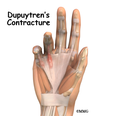 Dupuytren's Contracture   eOrthopod.com