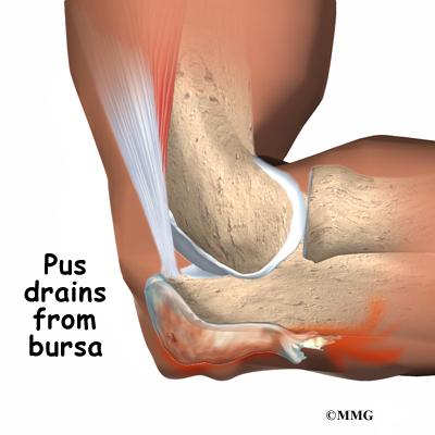 Elbow Bursitis Infection