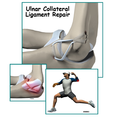 Ulnar Collateral Ligament Reconstruction (Tommy John ...
