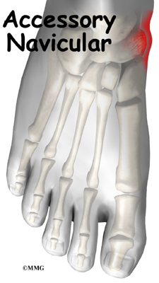 accessory navicular problems eorthopodcom