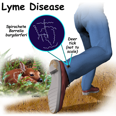 Can Ticks Give Dogs Lyme Disease