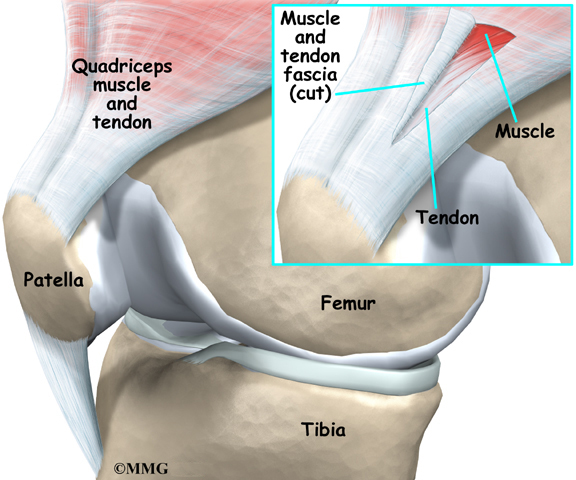 general_tendonitis_knee_anatomy05.jpg