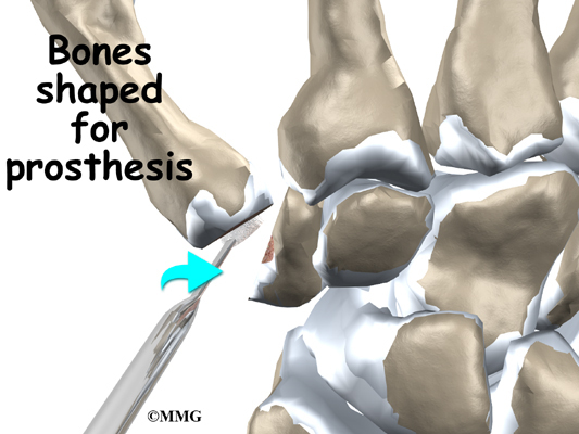 Artificial Joint Replacement Of The Thumb Eorthopod Com