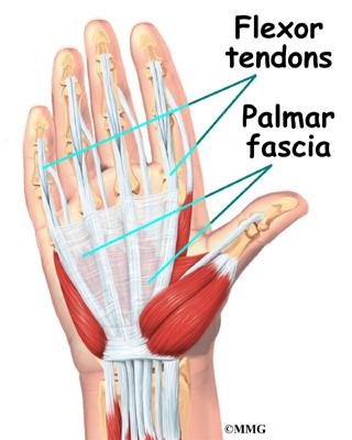 Trigger Finger Flexor Tendinitis - Eaton Hand