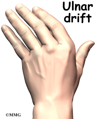 In rheumatoid arthritis, the fingers often become deformed as the disease