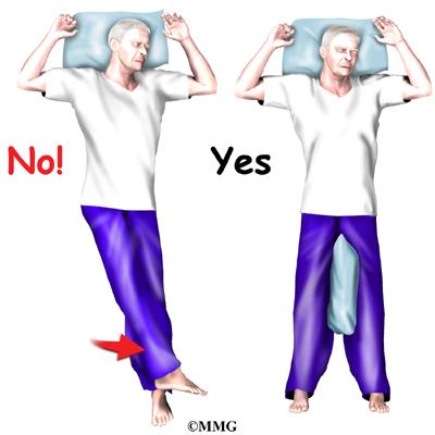 Artificial Hip Dislocation Precautions Eorthopod Com