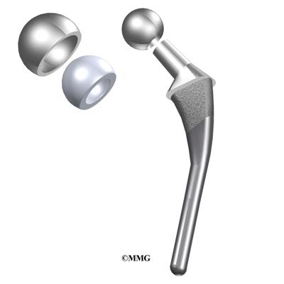 Hemiarthroplasty Of The Hip Eorthopod Com