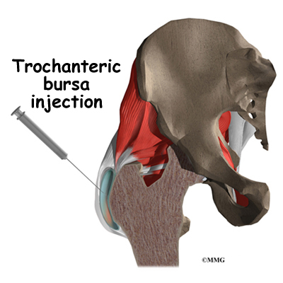 Trochanteric Bursitis of the Hip | eOrthopod.com