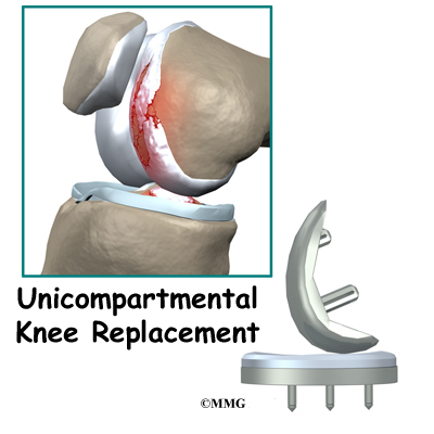 Unicompartmental Knee Replacement Eorthopod Com