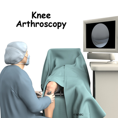 A Patient's Guide to Knee Arthroscopy | Orthopaedic Clinic ...