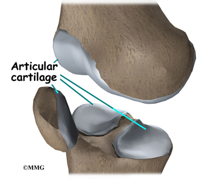 Weight Loss Seems to Spare Knee Cartilage