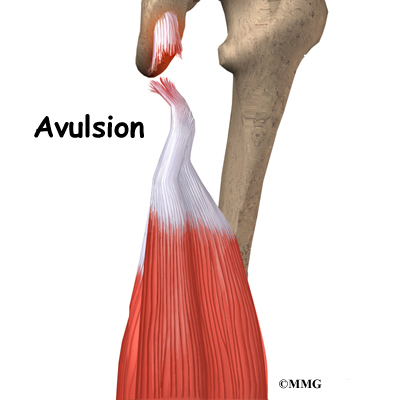 Knee Hamstring Injuries Anatomy: Avulsion