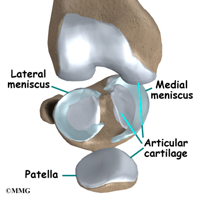 medial meniscus tear surgery recovery time