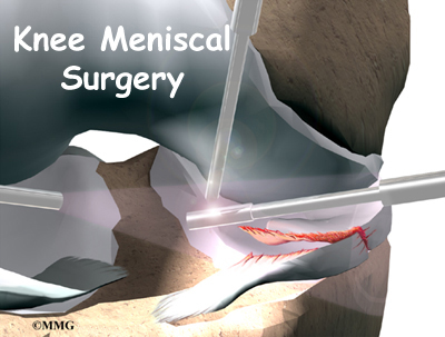 MENISCUS TEAR SURGERY COMPLICATIONS