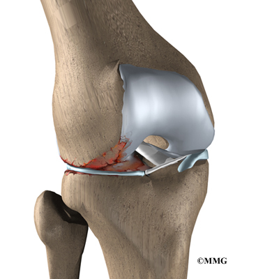 MENISCUS PAIN SYMPTOMS