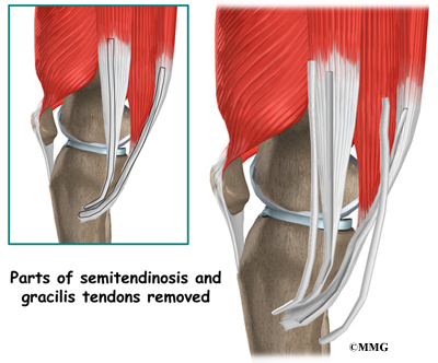 The gracilis and semitendinosus tendons can be taken out without    Semitendinosus Tendon