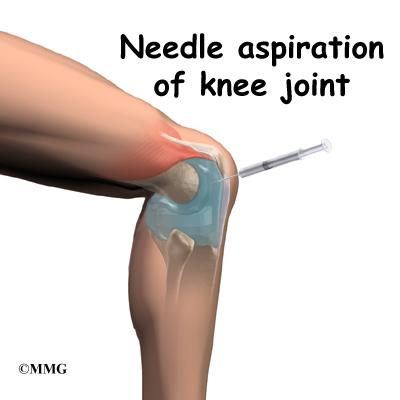 Revision Arthroplasty Of The Knee Eorthopod Com