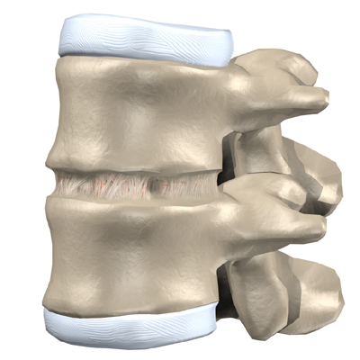used to treat problems such as disc degeneration, spine instability,